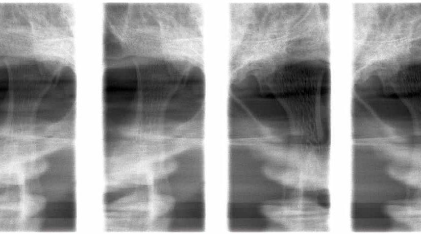 (376) Radiografia